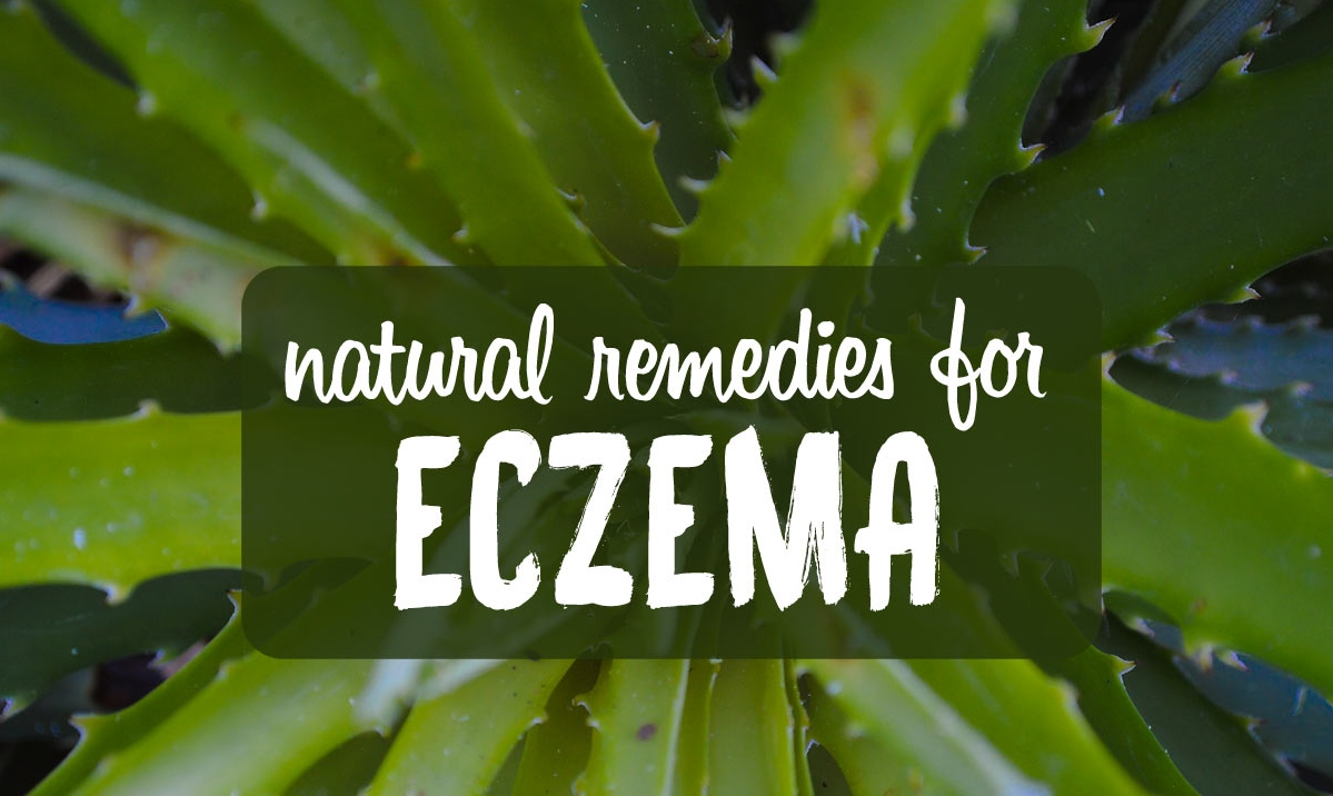 natural-remedies-eczema