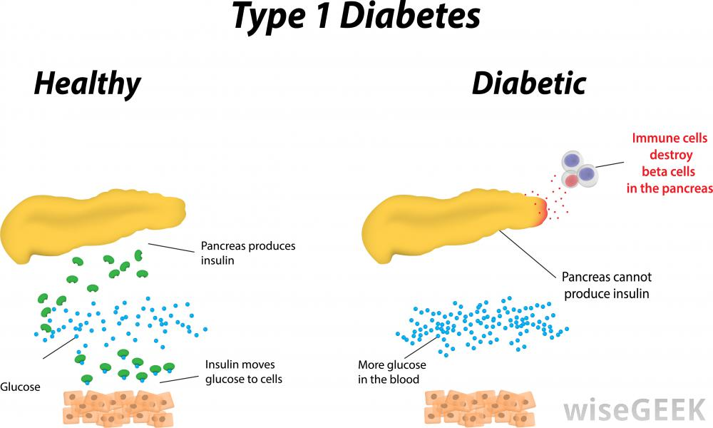 type-1-diabetes-diagram